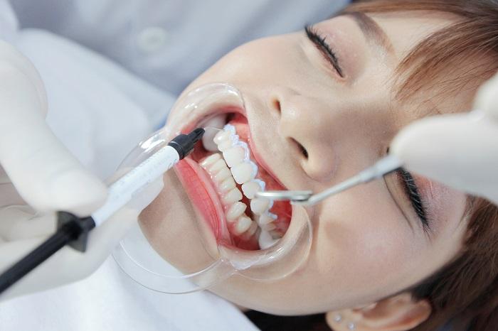 Quy trình tẩy trắng răng – Điều bạn nên nắm rõ khi thực hiện 5