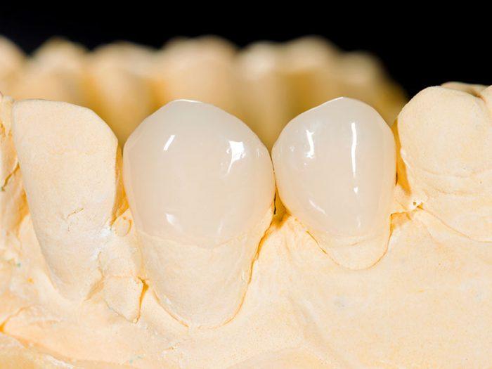 Quy trình trồng răng sứ ĐÚNG CHUẨN tại Nha khoa KIM 1