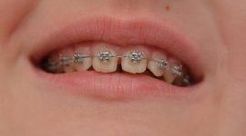 Giải pháp nào cho răng thưa đem lại hiệu quả tối ưu nhất?