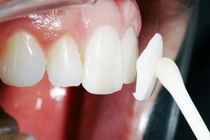 răng cửa bị thưa phải làm sao - 4