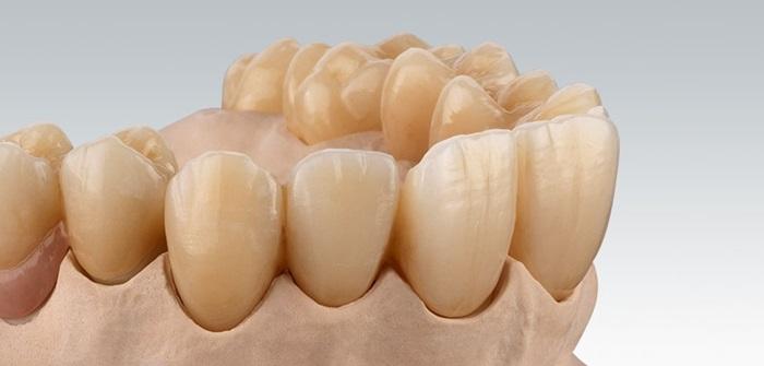 Răng sứ Ceramill có tốt không? Giá răng sứ Ceramill bao nhiêu tiền? 1