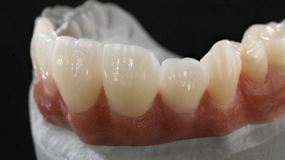 Địa chỉ trồng răng giả hiệu quả và uy tín – Bạn không nên bỏ qua