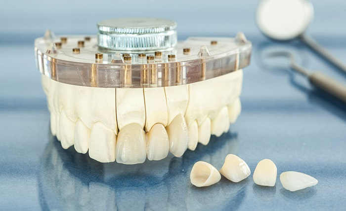 Răng sứ Ceramill có tốt không? Giá răng sứ Ceramill bao nhiêu tiền? 2