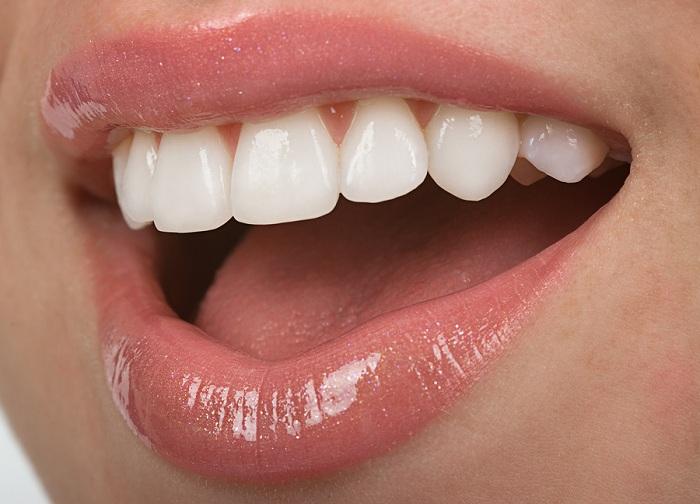răng sứ ceramill 2