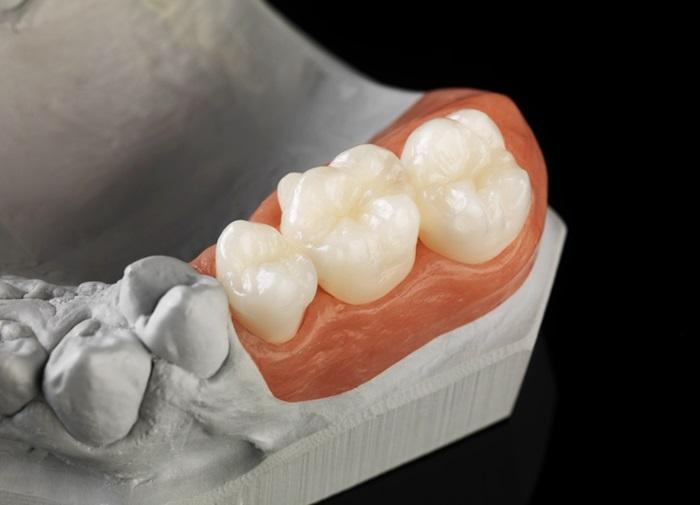 Răng sứ Ceramill có tốt không? Giá răng sứ Ceramill bao nhiêu tiền? 3