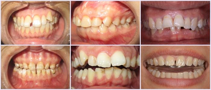 răng sứ ceramill 3
