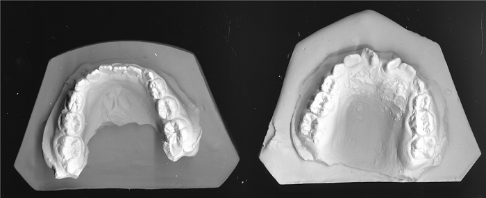 Đắp răng sứ - Giải pháp phục hình cho răng đẹp hoàn hảo, an toàn 6