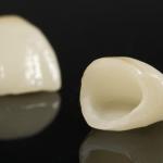 Răng sứ hỏng, rớt ra phải làm sao? Khắc phục thế nào hiệu quả?