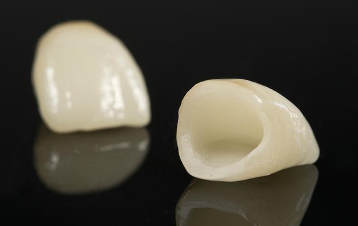 Bọc sứ cho răng hàm - Khi nào cần thực hiện và hiệu quả ra sao? 3