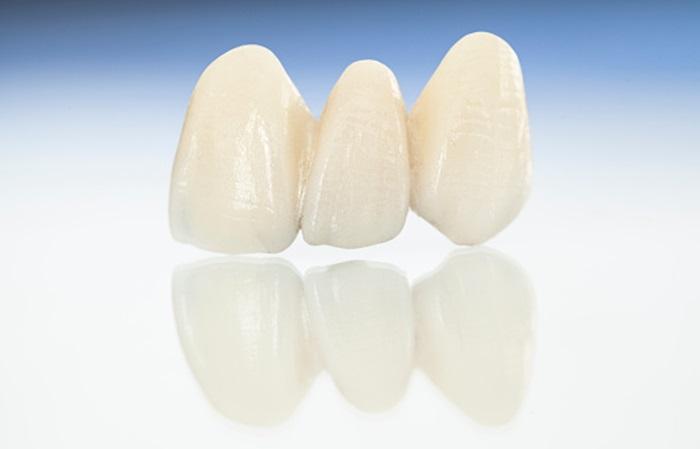 Răng sứ Nacera có tốt không? Giá răng sứ Nacera bao nhiêu tiền? 3
