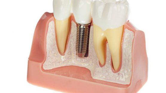 Đâu là tiêu chí quyết định địa chỉ trồng răng implant tại Hà Nội ?
