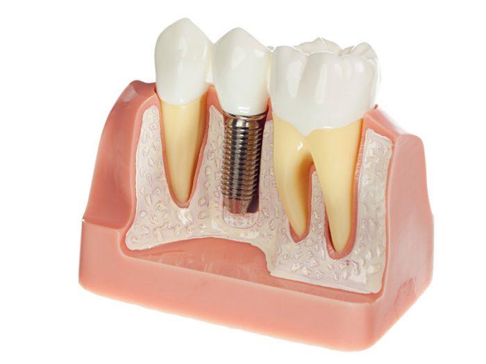 Gắn răng Implant ở đâu tốt, an toàn và hiệu quả cao? 1