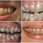 Tẩy răng bị nhiễm kháng sinh có được không? Cách nào hiệu quả?