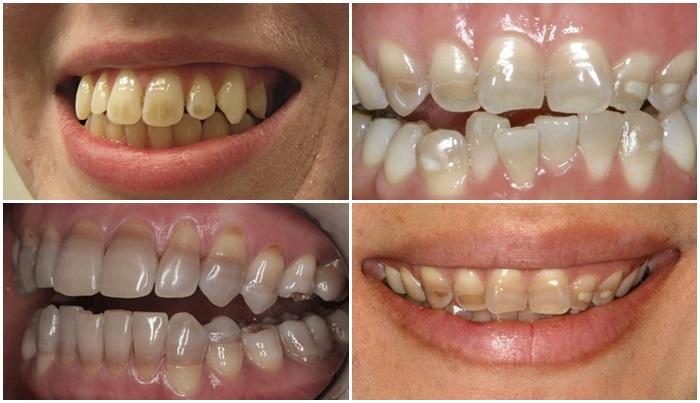 Tẩy răng bị nhiễm kháng sinh có được không? Cách nào hiệu quả? 1