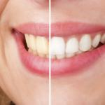 Tẩy trắng răng có đau không? Phương pháp nào an toàn, hiệu quả nhất?