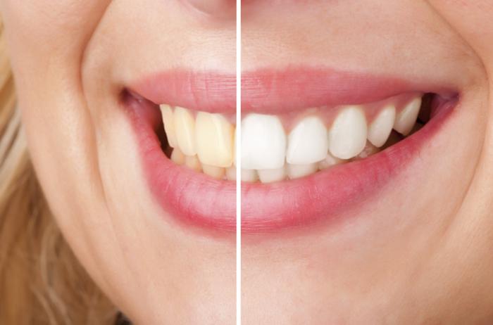 Tẩy trắng răng có đau không? Phương pháp nào an toàn, hiệu quả nhất? 1