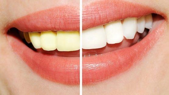 Tẩy trắng răng có hại không? Làm sao để tẩy trắng răng an toàn?