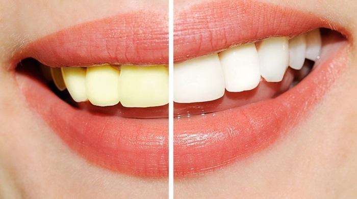 Tẩy trắng răng có hại không? Làm sao để tẩy trắng răng an toàn? 1