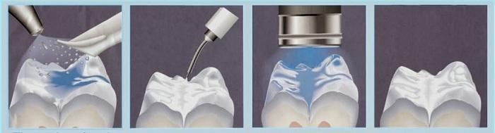 Trám răng composite - Giải pháp tái tạo răng Nhanh & An toàn 1