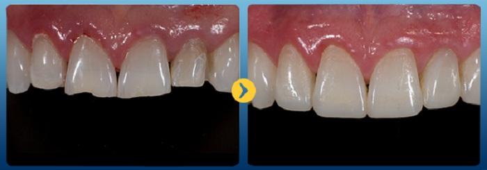 Trám răng composite - Giải pháp tái tạo răng Nhanh & An toàn 2