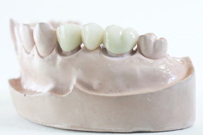 Trồng răng phục hình và những thông tin bổ ích cần biết 2