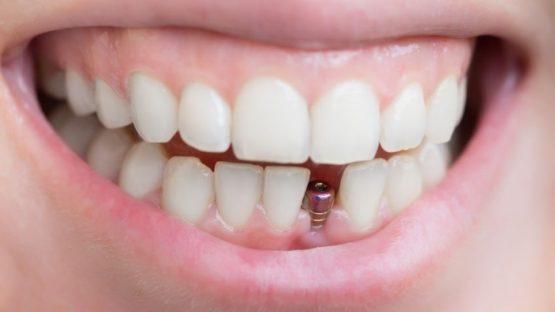 Trồng răng cửa – Giải pháp lấy lại hàm răng đều đặn, chức năng tuyệt vời