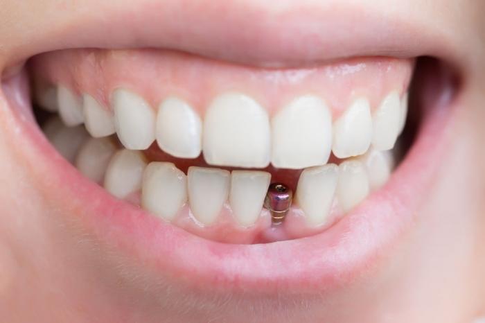 trồng răng cửa - 4