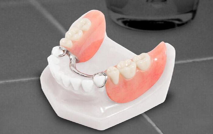 Tư vấn trồng răng – Phương pháp nào trồng răng hiệu quả và an toàn nhất? 3