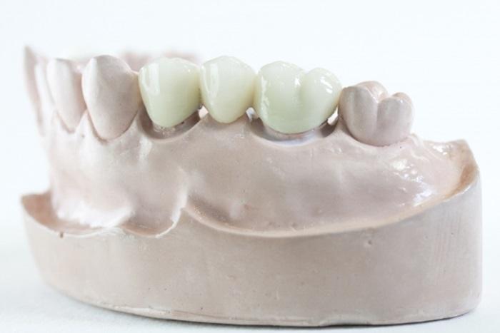 Tư vấn trồng răng – Phương pháp nào trồng răng hiệu quả và an toàn nhất? 4