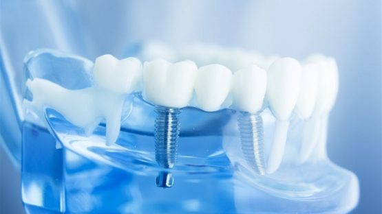 Cắm implant thay thế răng đã mất bền chắc suốt đời