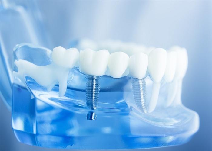 Duy trì hiệu quả dài lâu với răng implant