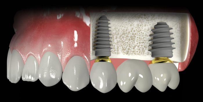 Trồng răng giả cố định bằng implant - Phục hình hoàn chỉnh, tối ưu nhất 3