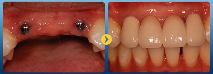 Cấy răng implant - Tại sao lại được nhiều người lựa chọn? 2
