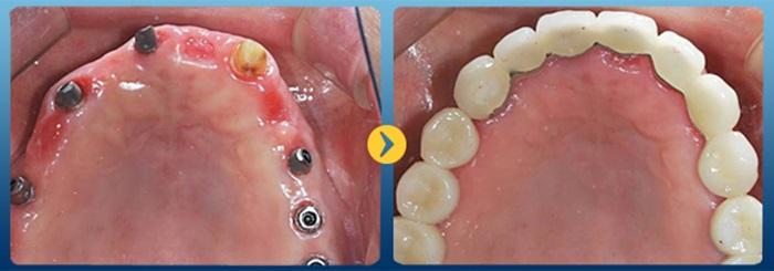 Giá trồng răng implant bao nhiêu tiền 1