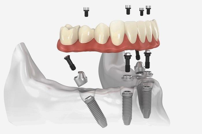 Làm răng nguyên hàm thực hiện bằng phương pháp nào? 2