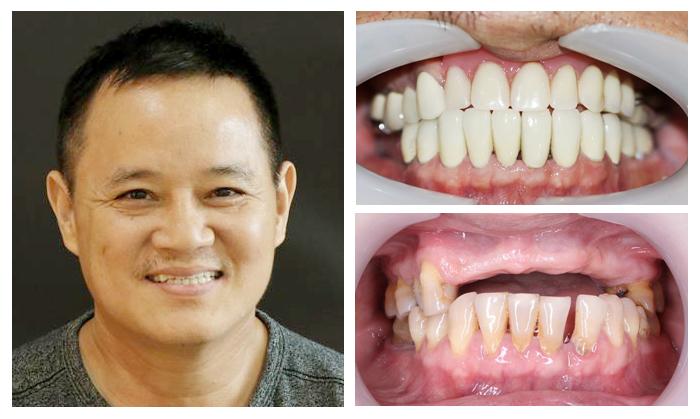 Trồng răng implant ở đâu tốt TPHCM 4