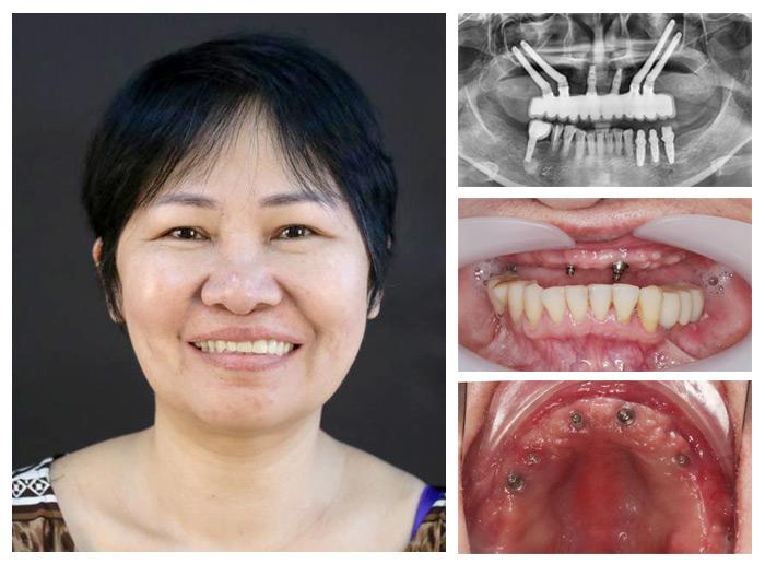 Trồng răng implant ở đâu tốt TPHCM 2