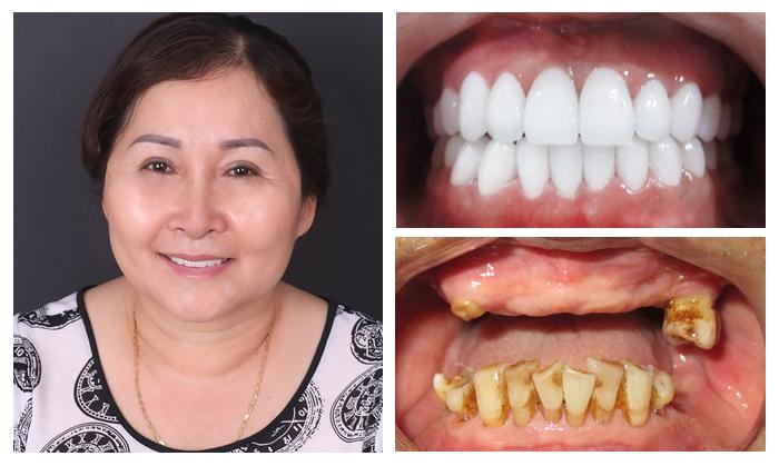 Trồng răng nguyên hàm - Giải pháp phục hồi cho răng bền chắc, thẩm mỹ 9