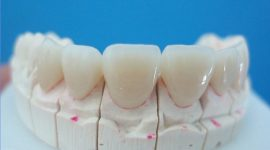 Răng sứ ceramill giá bao nhiêu?