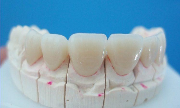 Răng sứ ceramill giá bao nhiêu 1