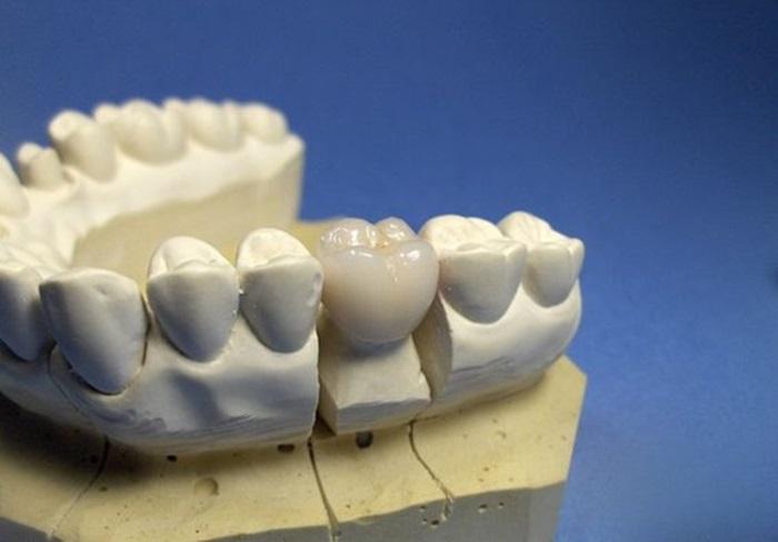 Trồng răng phục hình và những thông tin bổ ích cần biết 1