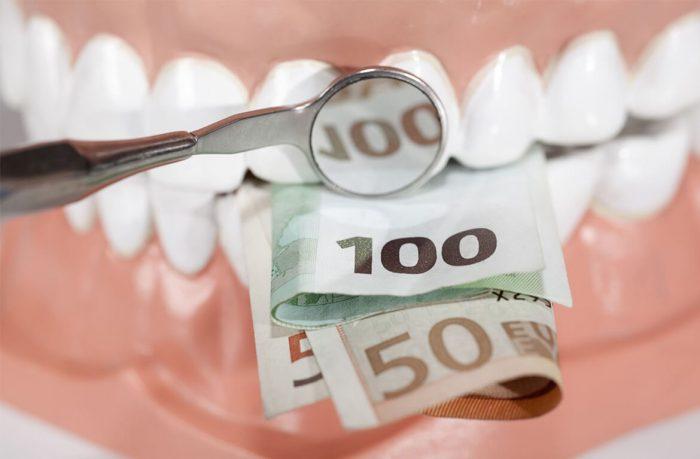 Chi phí trồng răng sứ vĩnh viễn giá bao nhiêu tiền là mức rẻ nhất 7