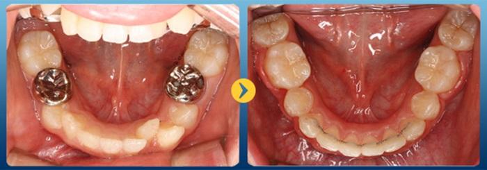 Bọc sứ răng cấm 4