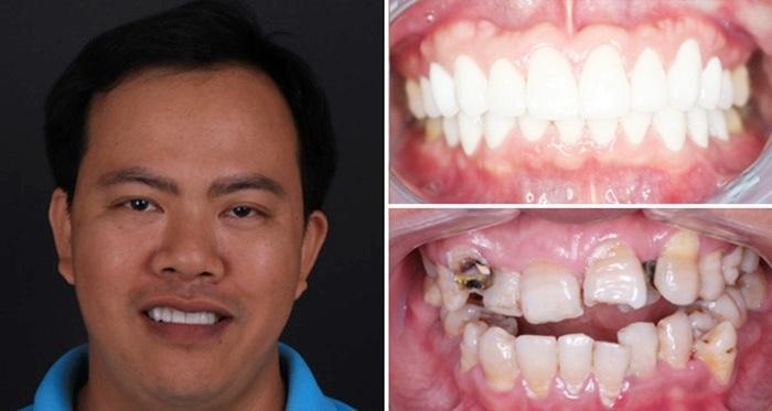 Phục hình răng & những phương pháp tái tạo thẩm mỹ răng hiệu quả 4
