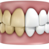 Chân răng bị đen – Nguyên nhân do đâu, làm sao loại bỏ vết đen hiệu quả?