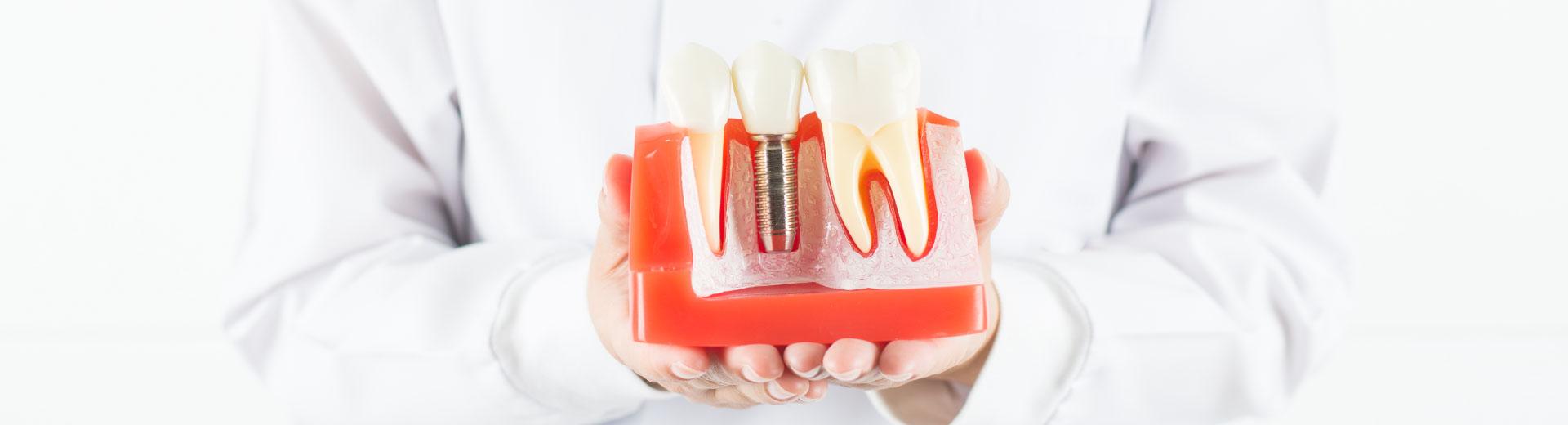 Implant loại nào tốt nhất được nhiều người lựa chọn?