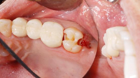 Sâu răng số 8 phải làm sao? Nên điều trị hay nhổ bỏ tốt hơn?