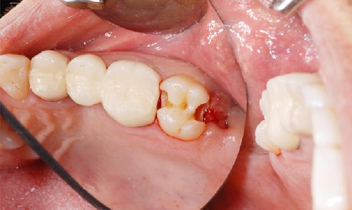 Sâu răng số 8 phải làm sao? Nên điều trị hay nhổ bỏ tốt hơn? 1