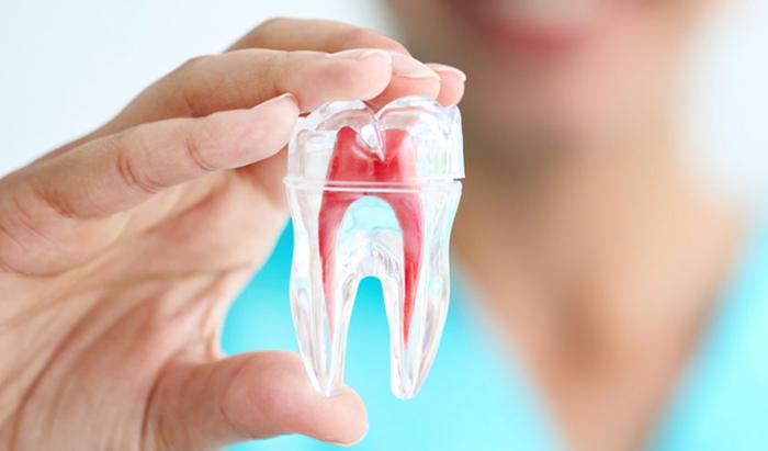 Trám răng lấy tủy – Những mặt lợi và hại mà bạn nên biết 1