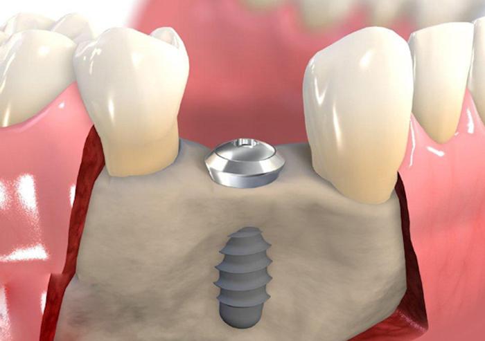 Trồng răng hàm trên bằng implant giá bao nhiêu tiền 2